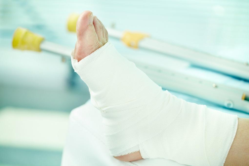 размер страховки за перелом ноги